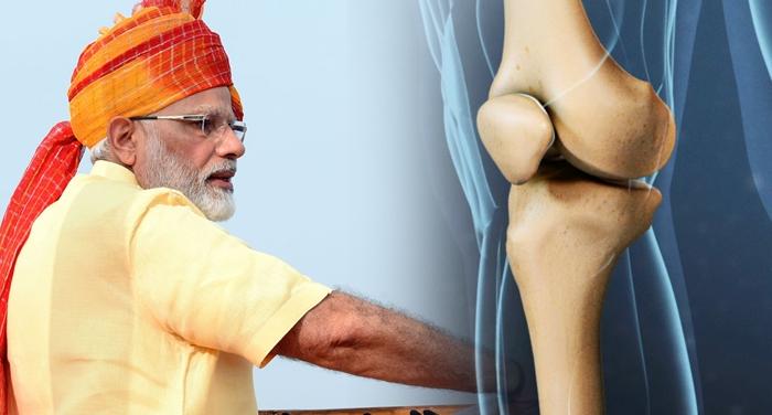 सरकार ने ऑपरेशन के जरिए घुटना बदलवाने की कीमत को किया सस्ता