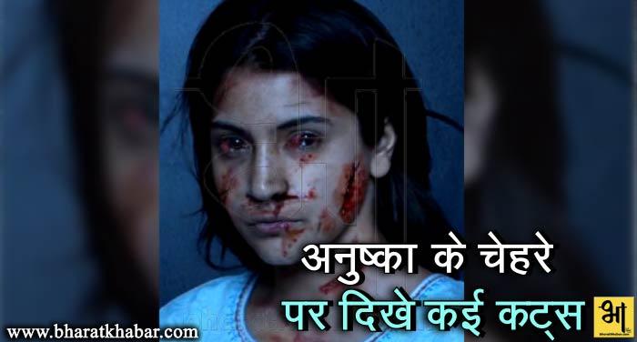 शादी के बाद अनुष्का ने शेयर की अपनी तस्वीर, चेहरे पर हैं खून और कट के निशान…..