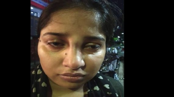 पुलिस के ड़डे से टूटी लड़की की नाक, सीएम योगी ने दिए जांच के आदेश