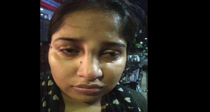 police पुलिस के ड़डे से टूटी लड़की की नाक, सीएम योगी ने दिए जांच के आदेश