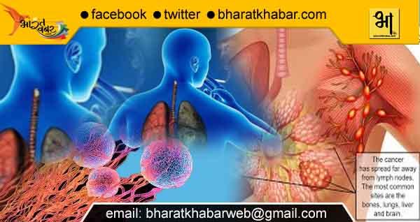 मंत्रिमंडल ने कैंसर शोध पहल पर भारत और ब्रिटेन के बीच समझौता ज्ञापन को मंजूरी दी