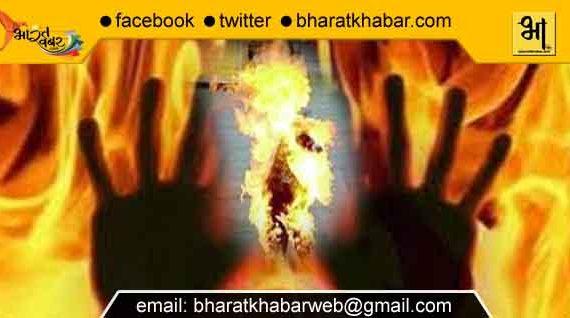 पत्नी का अजब रंग: पति के सांवले रंग से चिढ़ने से लगा दी आग, जिंदा जलाया