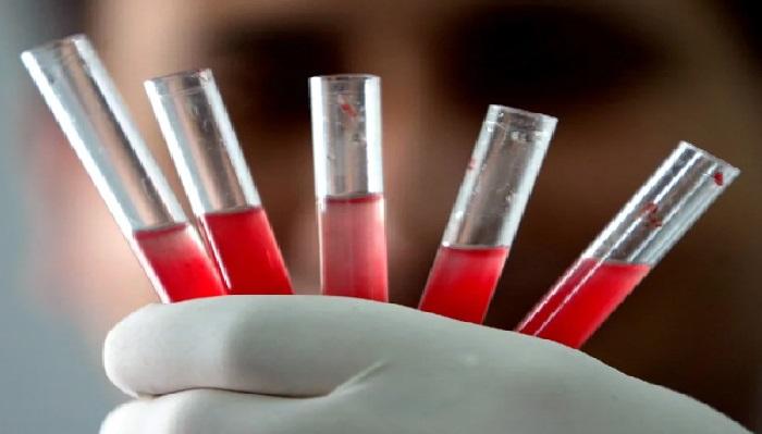 बल्ड ग्रुप कोरोना वायरस को लेकर रोज नई रिसर्च, इस ब्लड ग्रुप वालों को कोरोना का सबसे ज्यादा खतरा