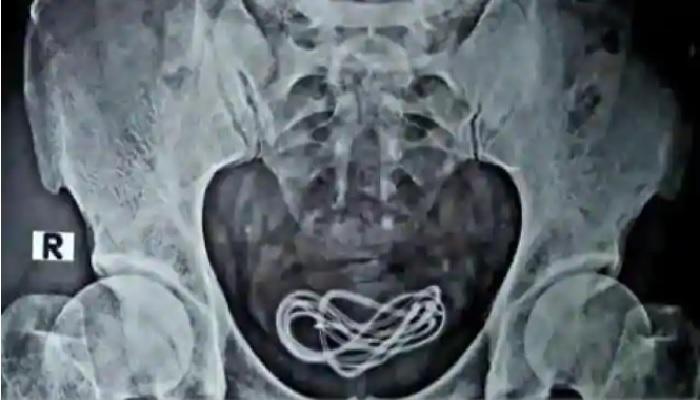 charger 1 पेट में हुआ दर्द डॉक्टरों ने खोला पेट तो निकला चार्जर, कहानी जानकर आप हैरान हो जाएंगे..