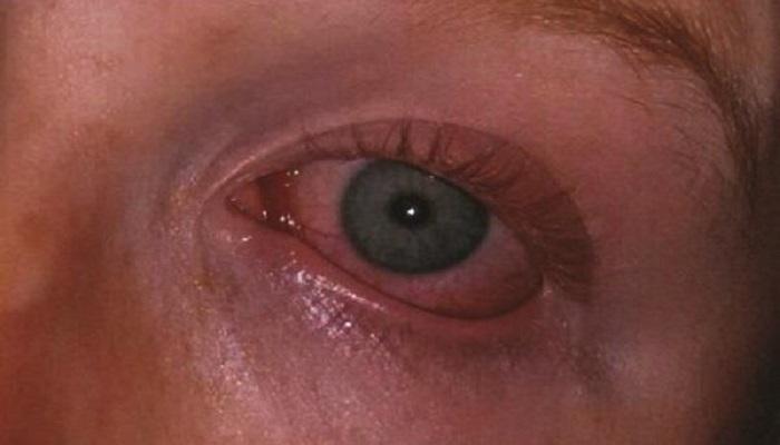 eye 2 अगर आपकी आखों की रोशनी हो रही कम, तो करें ये योगासन, मिलेगा फायदा