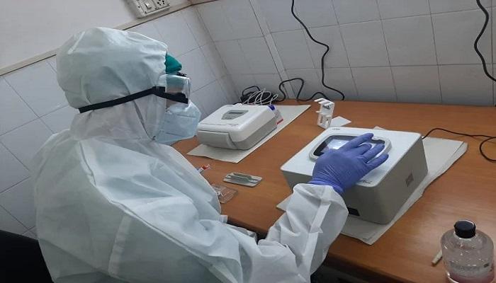 meerut 4 मेरठ मेडिकल कॉलेज में आई ट्रू नेट मशीन, 1 मिनट में होगी कोरोना की जांच