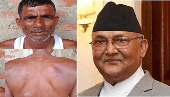 naipal.jpg 2 बंधक बनाने के बाद नेपाल पुलिस ने भारतीय को छोड़ा, ऐसे सुलझाया गया मामला