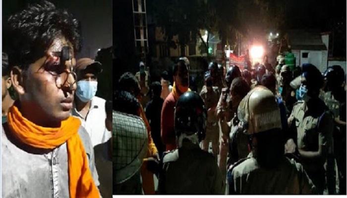 uttrakhand 6 उत्तरखंड पुलिस का क्रुर चेहरा आया सामने, वाहन चेकिंग के दौरान युवक के माथे में गोदी चाबी