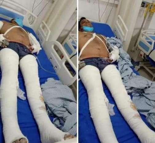 पुलिस ने सरपंचपति से मारपीट कर सड़क पर फेंका, पीड़ित ने लगाया पैसें मांगने का आरोप